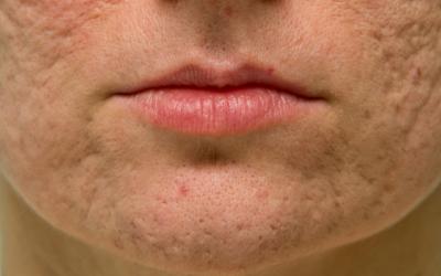 Qual o melhor tratamento para cicatrizes de acne?